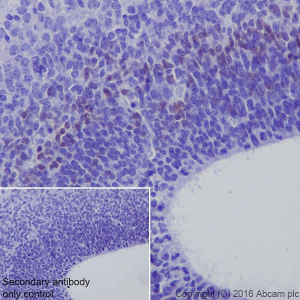 Immunohistochemistry (Formalin/PFA-fixed paraffin-embedded sections) - Anti-TBR2 / Eomes antibody [EPR19012] (ab183991)