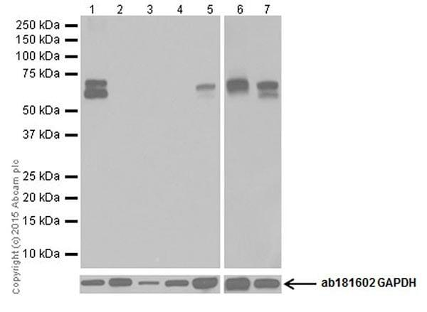 Western blot - Anti-GAD65 + GAD67 antibody [EPR19366] (ab183999)