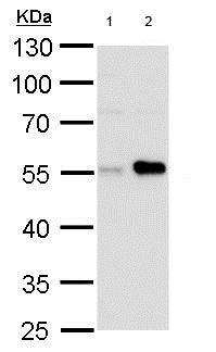 Western blot - Anti-Carbonic Anhydrase 9/CA9 antibody (ab184006)