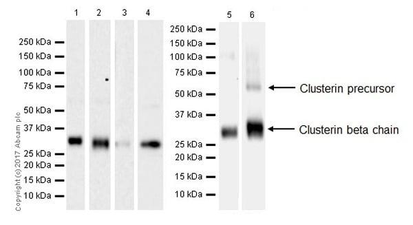 Western blot - Anti-Clusterin beta chain antibody [EPR17538-101] (ab184099)