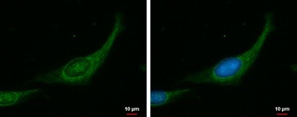 Immunocytochemistry/ Immunofluorescence - Anti-Myosin Phosphatase antibody (ab184121)