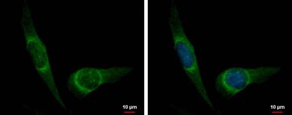 Immunocytochemistry/ Immunofluorescence - Anti-DUSP8 antibody (ab184134)