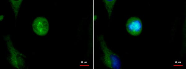 Immunocytochemistry/ Immunofluorescence - Anti-Astrin/Deepest antibody (ab184142)