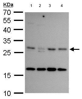 Western blot - Anti-CITED2 antibody (ab184145)
