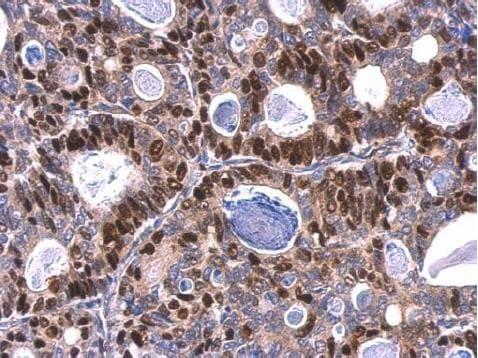 Immunohistochemistry (Formalin/PFA-fixed paraffin-embedded sections) - Anti-MCM6 antibody (ab184147)