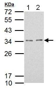 Western blot - Anti-TPRGL antibody (ab184153)