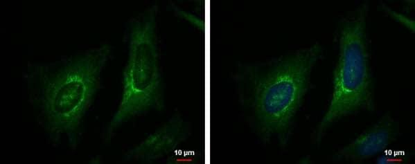 Immunocytochemistry/ Immunofluorescence - Anti-eNOS (phospho S1177) antibody (ab184154)