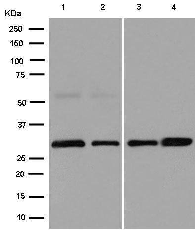 Western blot - Anti-IMPA1 antibody [EPR15404(B)] (ab184165)