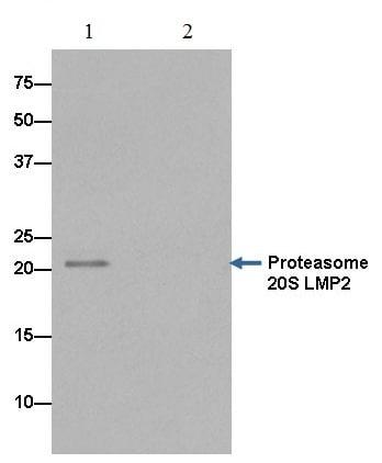 Immunoprecipitation - Anti-Proteasome 20S LMP2 antibody [EPR13785] (ab184172)