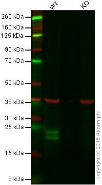 Western blot - Anti-Proteasome 20S LMP2 antibody [EPR13785] (ab184172)