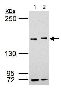 Western blot - Anti-KMT3A / HYPB / HIF-1 antibody (ab184190)