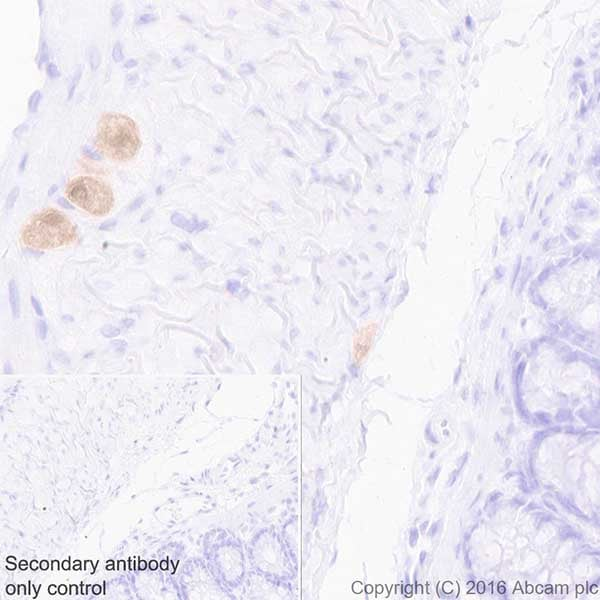 Immunohistochemistry (Formalin/PFA-fixed paraffin-embedded sections) - Anti-HuD + HuC antibody [EPR19098] (ab184267)