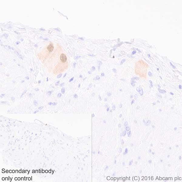 Immunohistochemistry (Formalin/PFA-fixed paraffin-embedded sections) - Anti-HuD + HuC antibody [EPR19098] (ab184267)