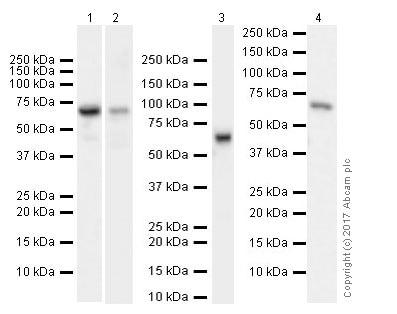 Western blot - Anti-IGF2BP1/IMP1 antibody [EPR18791] (ab184305)