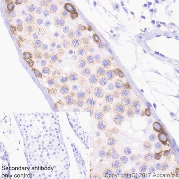 Immunohistochemistry (Formalin/PFA-fixed paraffin-embedded sections) - Anti-IGF2BP1/IMP1 antibody [EPR18791] (ab184305)