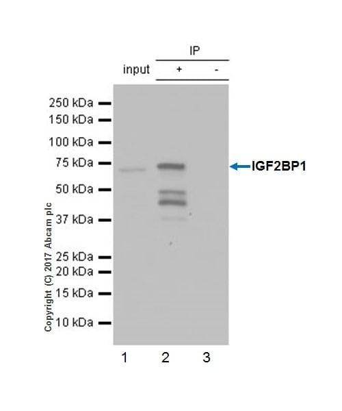 Immunoprecipitation - Anti-IGF2BP1/IMP1 antibody [EPR18791] (ab184305)