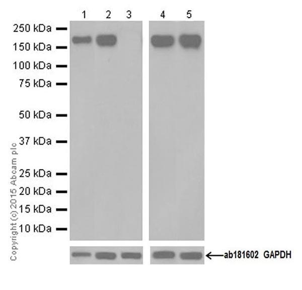 Western blot - Anti-CD11b antibody [EPR19373] (ab184307)