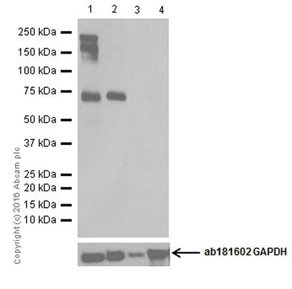 Western blot - Anti-Neurofascin antibody [EPR19003] (ab184377)