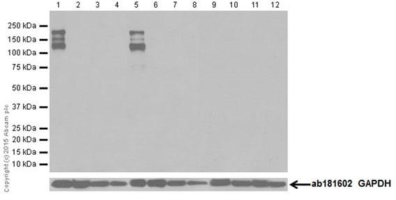 Western blot - Anti-Neurofascin antibody [EPR19004] (ab184378)