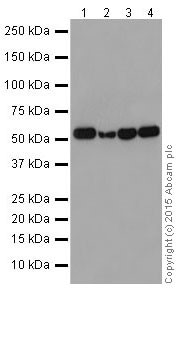 Western blot - Anti-P2Y12 antibody [EPR18611] (ab184411)