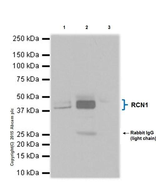 Immunoprecipitation - Anti-RCN1/RCN antibody [EPR19193] (ab184441)