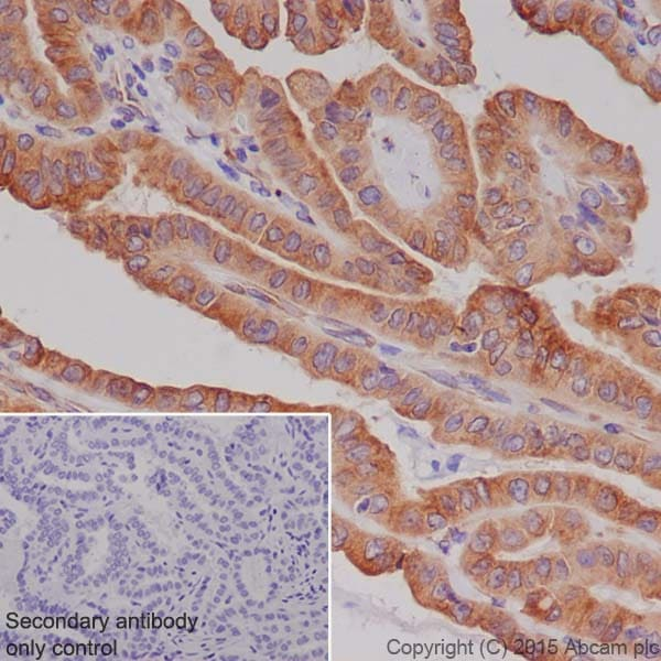 Immunohistochemistry (Formalin/PFA-fixed paraffin-embedded sections) - Anti-RCN1/RCN antibody [EPR19193] (ab184441)