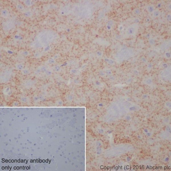 Immunohistochemistry (Formalin/PFA-fixed paraffin-embedded sections) - Anti-Dopamine Transporter antibody [EPR19695] (ab184451)