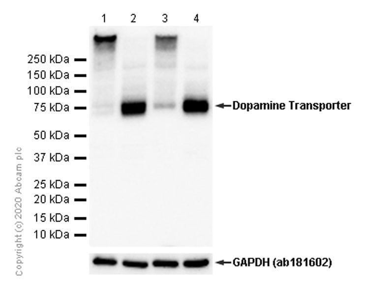 Western blot - Anti-Dopamine Transporter antibody [EPR19695] (ab184451)