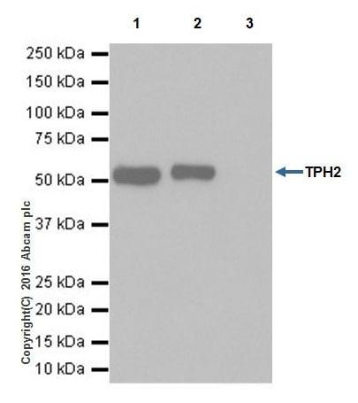 Immunoprecipitation - Anti-TPH2 antibody [EPR19191] (ab184505)