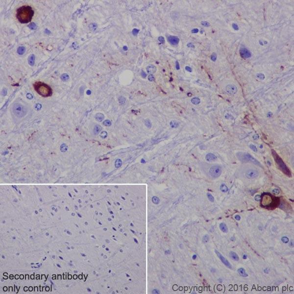 Immunohistochemistry (Formalin/PFA-fixed paraffin-embedded sections) - Anti-TPH2 antibody [EPR19191] (ab184505)