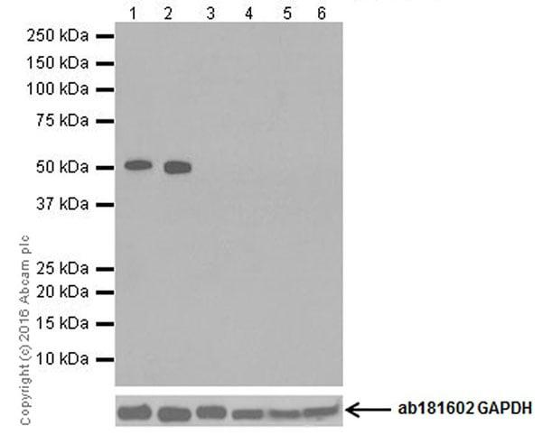Western blot - Anti-TPH2 antibody [EPR19191] (ab184505)