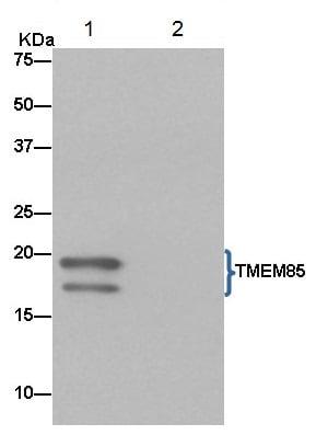 Immunoprecipitation - Anti-EMC4 antibody [EPR15080] (ab184544)