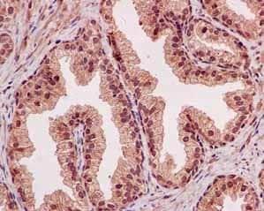 Immunohistochemistry (Formalin/PFA-fixed paraffin-embedded sections) - Anti-NOLC1 antibody [EPR14896] (ab184550)