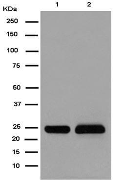 Western blot - Anti-PPIC antibody [EPR15355] - C-terminal (ab184552)