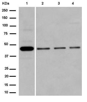 Western blot - Anti-SDS3 antibody [EPR15000] (ab184555)