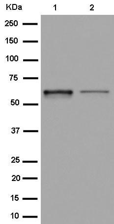 Western blot - Anti-FPGS antibody [EPR11064] (ab184564)