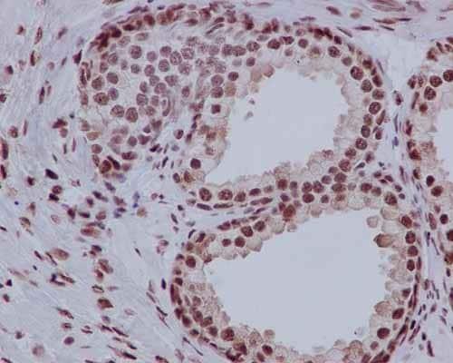 Immunohistochemistry (Formalin/PFA-fixed paraffin-embedded sections) - Anti-PHAPI2 / APRIL antibody [EPR14589] (ab184565)