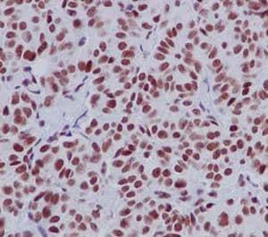 Immunohistochemistry (Formalin/PFA-fixed paraffin-embedded sections) - Anti-RTF1 antibody [EPR13615] (ab184570)