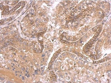 Immunohistochemistry (Formalin/PFA-fixed paraffin-embedded sections) - Anti-Ihh antibody (ab184624)