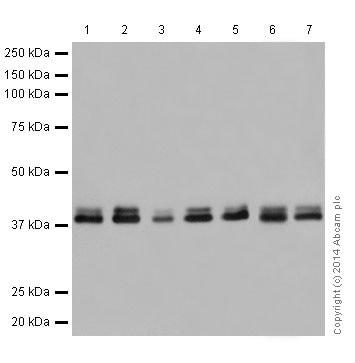 Western blot - Anti-ERK1 + ERK2 antibody [EPR17526] (ab184699)