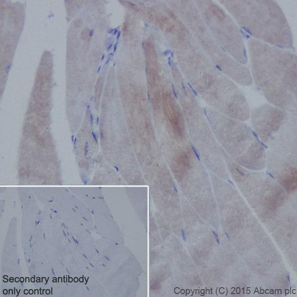 Immunohistochemistry (Formalin/PFA-fixed paraffin-embedded sections) - Anti-Alpha Skeletal Muscle Actin antibody [EPR18430] (ab184705)