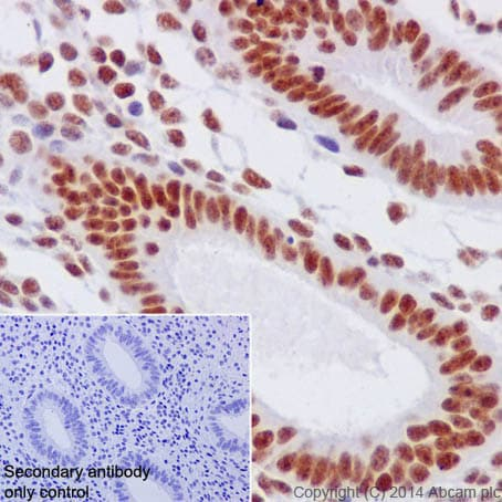 Immunohistochemistry (Formalin/PFA-fixed paraffin-embedded sections) - Anti-HIF1 beta antibody [EPR17516] (ab184711)