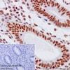 Immunohistochemistry (Formalin/PFA-fixed paraffin-embedded sections) - Anti-HIF1 beta antibody [EPR17516] (ab184711)