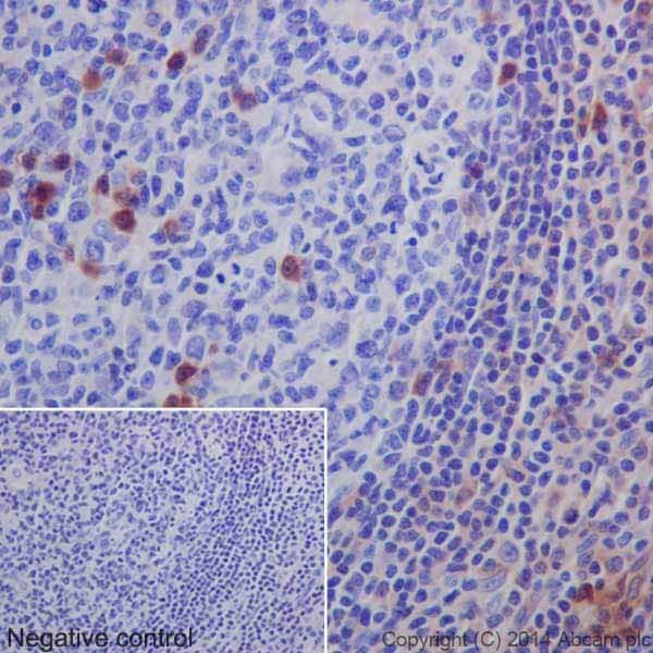 Immunohistochemistry (Formalin/PFA-fixed paraffin-embedded sections) - Anti-MLKL antibody [EPR17514] (ab184718)