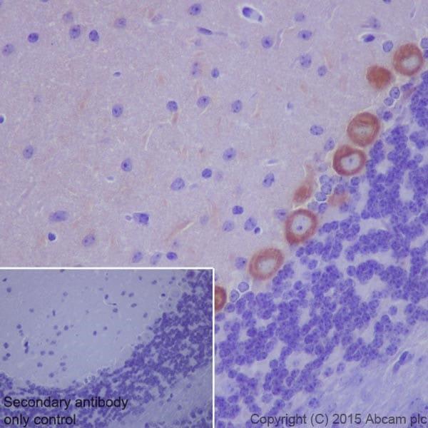 Immunohistochemistry (Formalin/PFA-fixed paraffin-embedded sections) - Anti-Phospholipase C beta 1 + Phospholipase C beta 3 antibody [EPR18714] (ab184743)