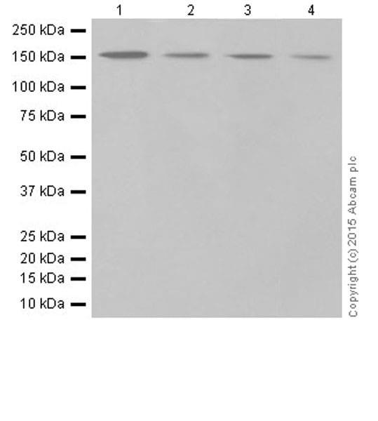 Western blot - Anti-Phospholipase C beta 1 + Phospholipase C beta 3 antibody [EPR18714] (ab184743)
