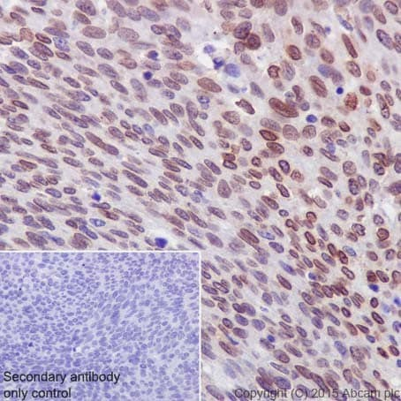 Immunohistochemistry (Formalin/PFA-fixed paraffin-embedded sections) - Anti-PKC alpha + beta 2 + gamma antibody [EPR18104] (ab184746)