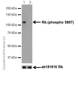 Western blot - Anti-Rb (phospho S807) antibody [EPR17732] (ab184796)