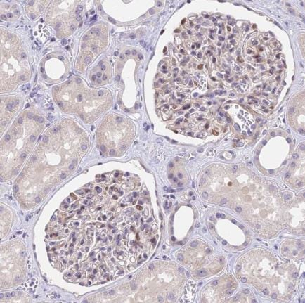 Immunohistochemistry (Formalin/PFA-fixed paraffin-embedded sections) - Anti-MIDN antibody (ab184825)