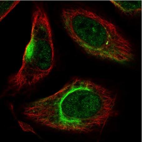 Immunocytochemistry/ Immunofluorescence - Anti-KATNAL2 antibody (ab184829)